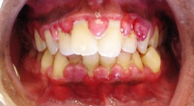 Gingivitis_wikipedia