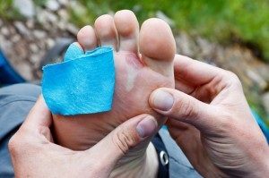 Survivopedia Blisters and Itching natural remedies